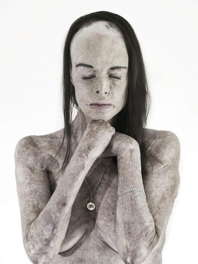 Ảnh khỏa thân của hoa khôi bị bỏng 85% cơ thể-2