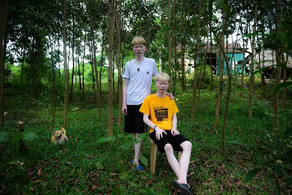 Thế giới riêng của cặp song sinh bạch tạng hiếm có ở Hà Tĩnh-1