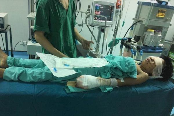 Thiếu niên bị nát tay, vỡ nhãn cầu cả 2 mắt sau tiếng nổ lớn-1