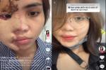 Cô gái bị chồng sắp cưới tạt axit lần đầu lộ diện cả khuôn mặt, tiết lộ 16 lần phẫu thuật đau đớn-4