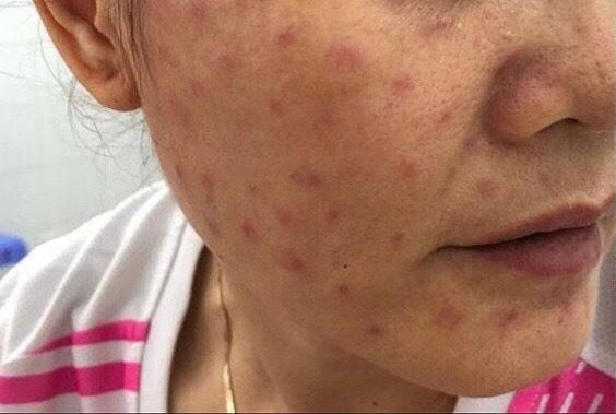 Hàng loạt trường hợp da nổi sần đỏ thành hàng vì tiêm tế bào gốc để trẻ hóa làn da-1