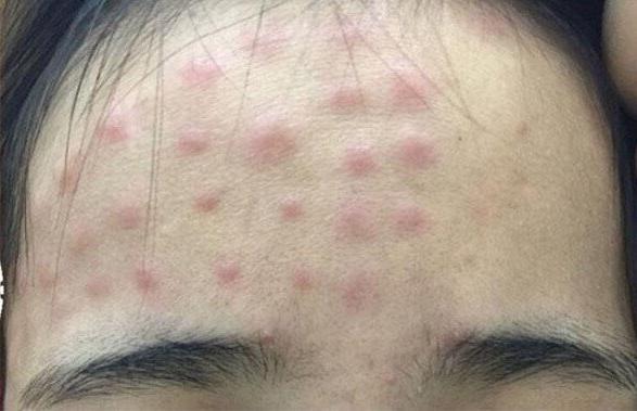 Hàng loạt trường hợp da nổi sần đỏ thành hàng vì tiêm tế bào gốc để trẻ hóa làn da-2