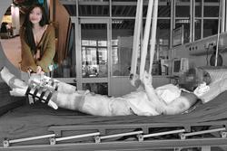 Nghị lực sống phi thường của cô giáo trẻ từng tai nạn bỏng nặng toàn thân