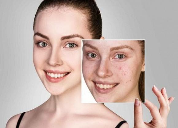 Mụn đầu đen, lỗ chân lông to, chỉ cần thực hiện ba bước đơn giản để có làn da láng mịn-1