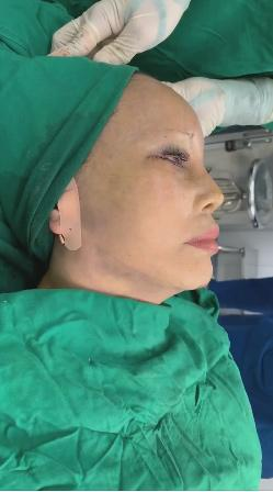 Cô dâu 63 tuổi thẩm mỹ căng da mặt, thành quả phẫu thuật ai cũng rùng mình-4