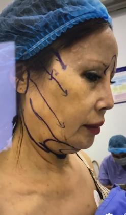 Cô dâu 63 tuổi thẩm mỹ căng da mặt, thành quả phẫu thuật ai cũng rùng mình-2