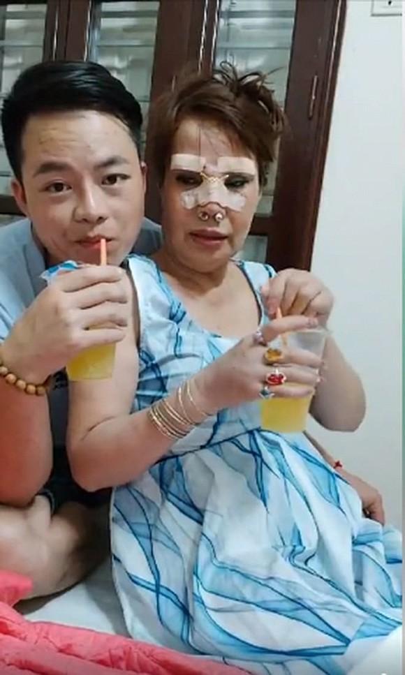 Cô dâu 63 tuổi thẩm mỹ căng da mặt, thành quả phẫu thuật ai cũng rùng mình-1