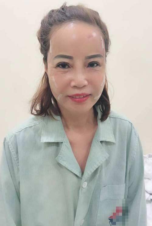 Cô dâu 63 tuổi thẩm mỹ căng da mặt, thành quả phẫu thuật ai cũng rùng mình-5
