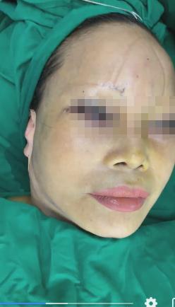 Cô dâu 63 tuổi thẩm mỹ căng da mặt, thành quả phẫu thuật ai cũng rùng mình-3