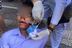 Vợ nguyên chủ tịch phường ở Thái Bình khai thuê 4 người chặn đánh cán bộ tư pháp
