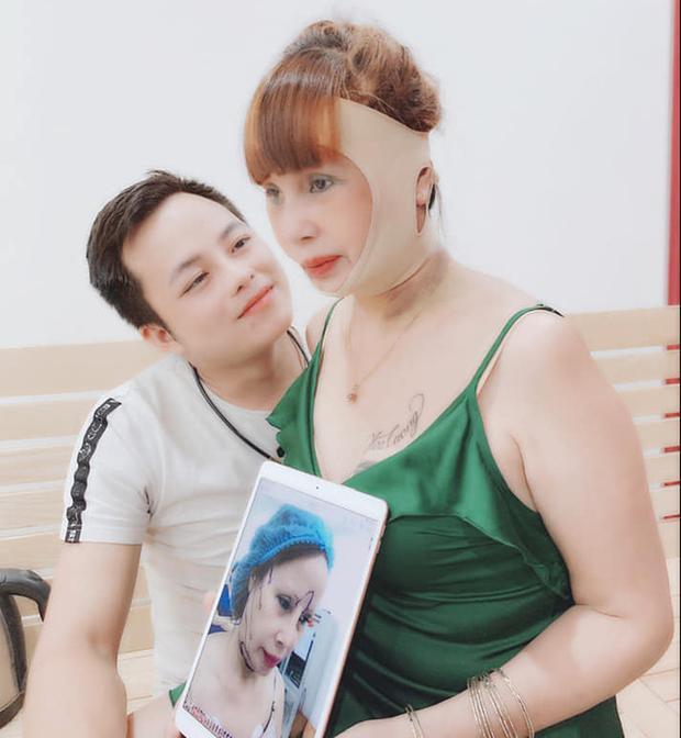 Miệng méo lệch mặt sau 4 ngày dao kéo, cô dâu Cao Bằng lo lắng biến chứng-4