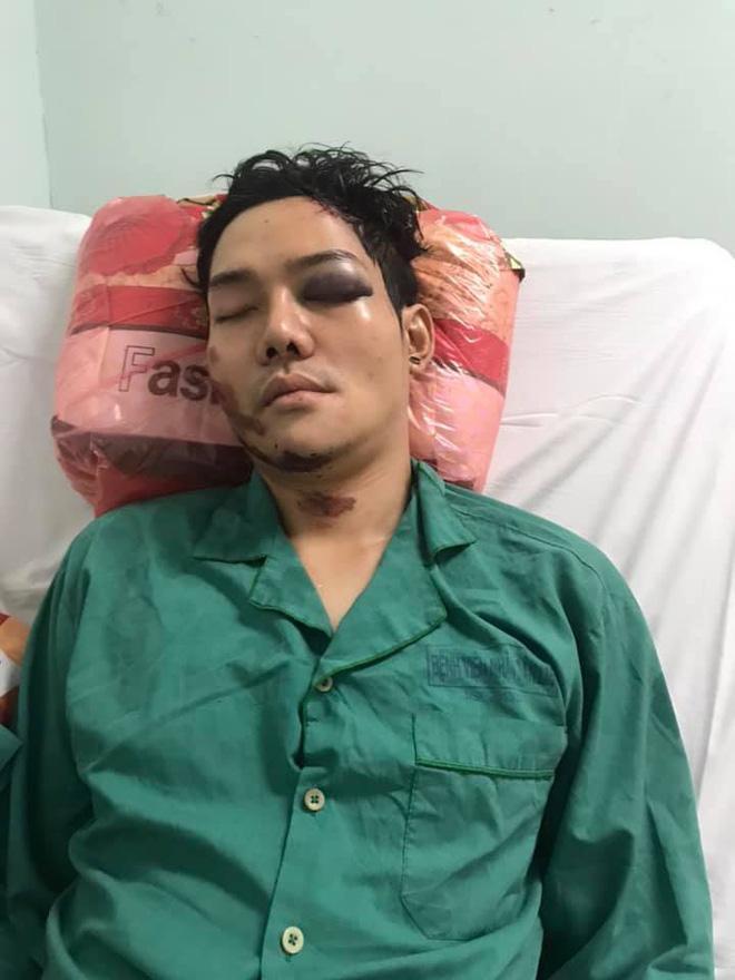 Đàn con nuôi Hoài Linh: Người ly hôn tuổi 25, người gặp tai nạn thảm khốc-6