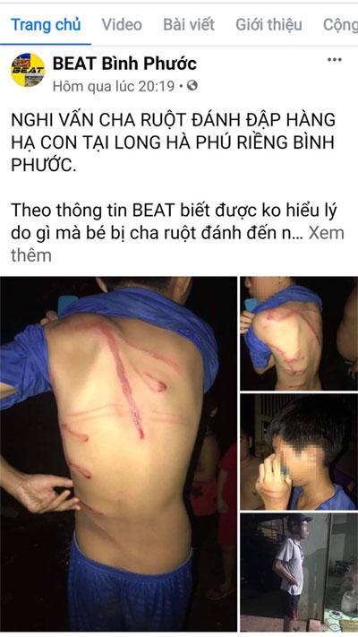 Công an tỉnh Bình Phước thông tin vụ cha bạo hành con ruột-1