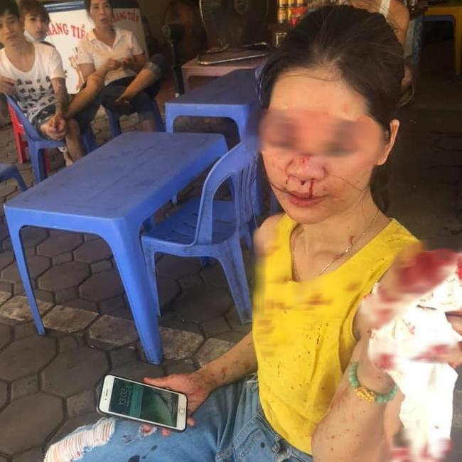 Sự thật nữ khách hàng bị thẩm mỹ viện Venus gọi giang hồ đánh chảy máu mặt vì đòi bảo hành-1