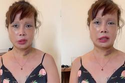 Tuyên bố 'chết cũng phải làm con ma đẹp', cô dâu 63 tuổi ở Cao Bằng quyết tâm nâng ngực