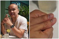 Diễn viên Đức Thịnh: 'Qua 5 bệnh viện mới biết mình bị ung thư'