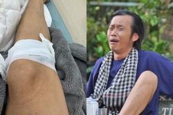 Danh hài Hoài Linh bị gà đá đến chảy máu chân, sa sẩm mặt mũi