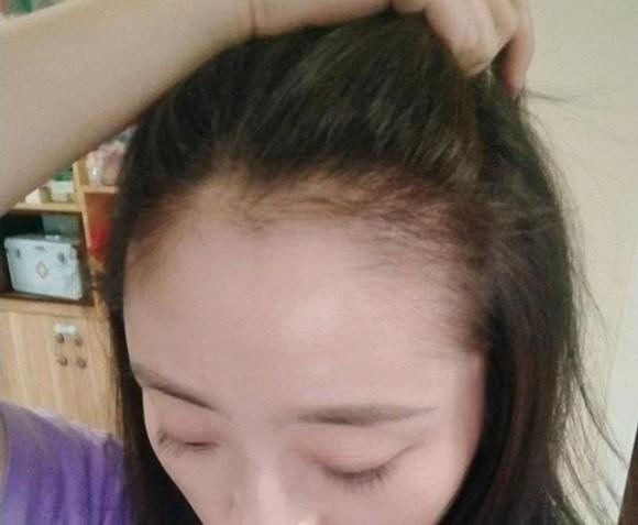 5 thói quen xấu khiến ngôi tóc to và đường chân tóc mọc về phía sau như hói, thậm chí rụng tóc liên tục-2