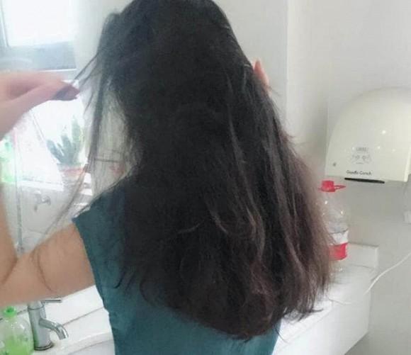 5 thói quen xấu khiến ngôi tóc to và đường chân tóc mọc về phía sau như hói, thậm chí rụng tóc liên tục-3