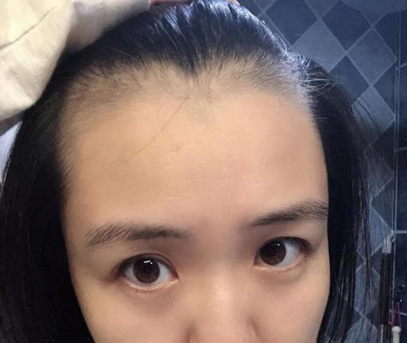 5 thói quen xấu khiến ngôi tóc to và đường chân tóc mọc về phía sau như hói, thậm chí rụng tóc liên tục-5