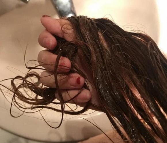 5 thói quen xấu khiến ngôi tóc to và đường chân tóc mọc về phía sau như hói, thậm chí rụng tóc liên tục-6