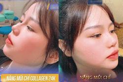 Xôn xao hình ảnh người yêu Quang Hải nâng mũi, sửa mặt