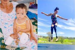 Bé gái người Quảng Nam mất 2 chân trong vụ nổ thương tâm 17 năm trước giờ ra sao?