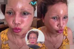 Mặt cô dâu 63 tuổi ở Cao Bằng đỏ rực, sưng phù, biến dạng gây ám ảnh