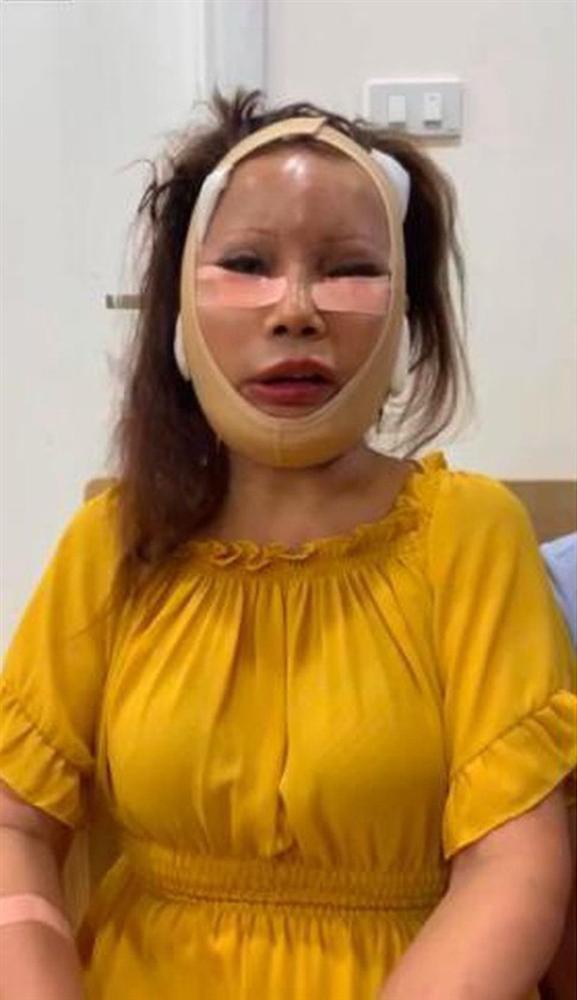 Ảnh mới của cô dâu 63 tuổi sau gần 2 tuần dao kéo: Mặt bớt sưng nhưng mồm vẫn méo-2