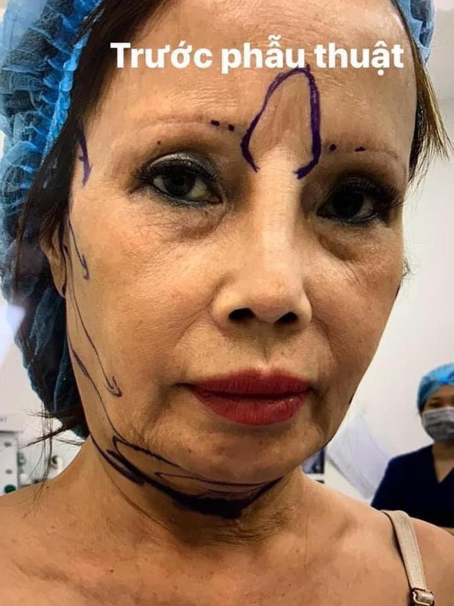 Ảnh mới của cô dâu 63 tuổi sau gần 2 tuần dao kéo: Mặt bớt sưng nhưng mồm vẫn méo-1