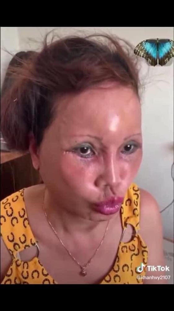 Ảnh mới của cô dâu 63 tuổi sau gần 2 tuần dao kéo: Mặt bớt sưng nhưng mồm vẫn méo-3