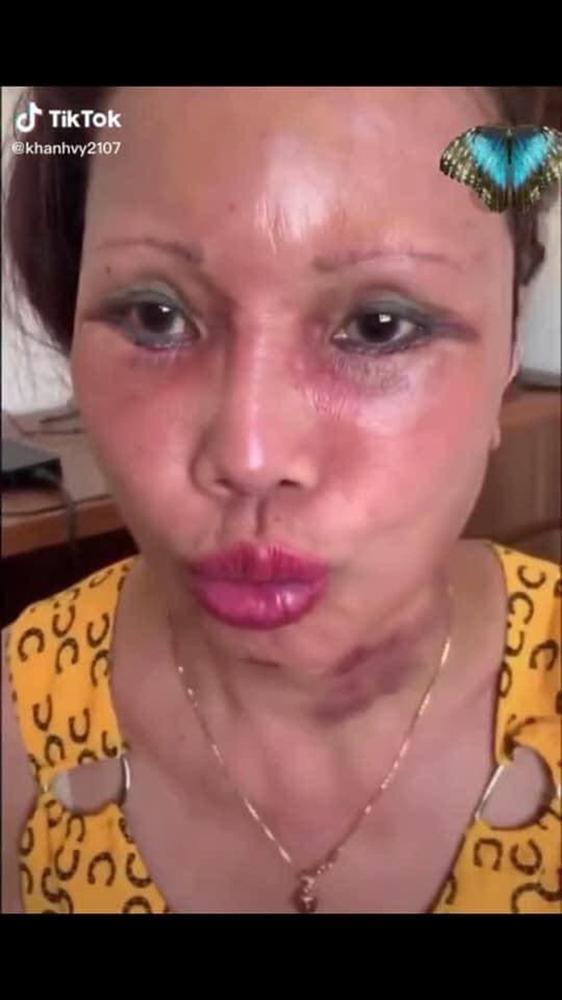 Ảnh mới của cô dâu 63 tuổi sau gần 2 tuần dao kéo: Mặt bớt sưng nhưng mồm vẫn méo-4