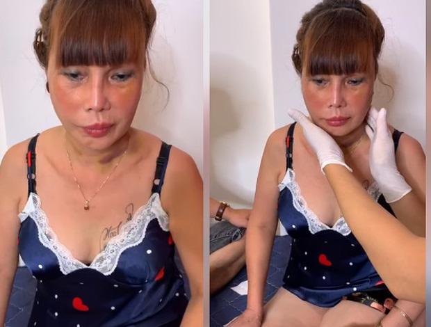 Ảnh mới của cô dâu 63 tuổi sau gần 2 tuần dao kéo: Mặt bớt sưng nhưng mồm vẫn méo-5