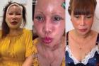 Ảnh mới của cô dâu 63 tuổi sau gần 2 tuần dao kéo: Mặt bớt sưng nhưng mồm vẫn méo