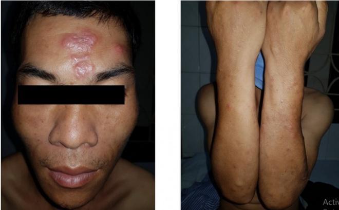 Bệnh phong xuất hiện ở Lạng Sơn-1