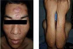 Bệnh phong xuất hiện ở Lạng Sơn