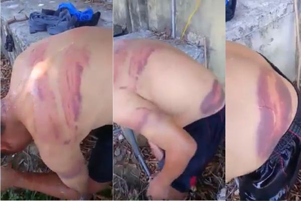 Người đàn ông mù đi ăn xin ở Nghệ An nghi bị vợ hờ đánh đập, bầm tím khắp người-1