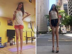Cô gái có đôi chân 1,34m, dài thứ hai thế giới, nhìn sang bố mẹ còn choáng váng hơn