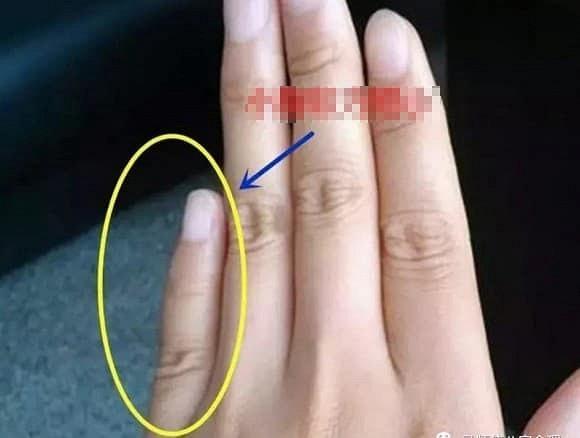 Chỉ cần nhìn ngón tay út cũng đoán được tính cách, chuyện tình duyên-3
