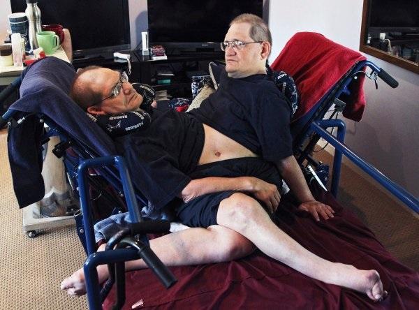 Cặp song sinh liền thân lớn tuổi nhất thế giới đã qua đời-1