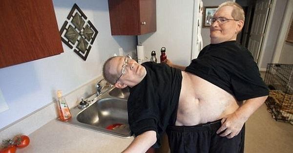 Cặp song sinh liền thân lớn tuổi nhất thế giới đã qua đời-2