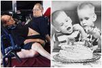 Ca mổ tách dính phức tạp cho 2 bé 13 tháng tuổi: Kéo dài 12 tiếng, êkip mổ 90 người-3