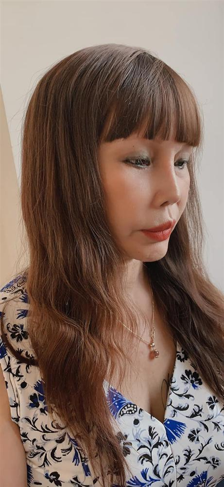 Chỉnh ảnh qua 7749 app, cô dâu Cao Bằng mặt vẫn lệch vẹo sau 3 tuần dao kéo-1