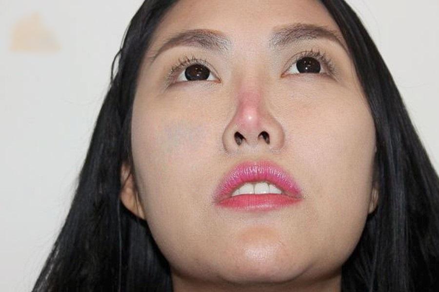 Biến chứng hậu phẫu thuật nâng mũi, cô gái bị áp xe đến lòi cả sụn-3