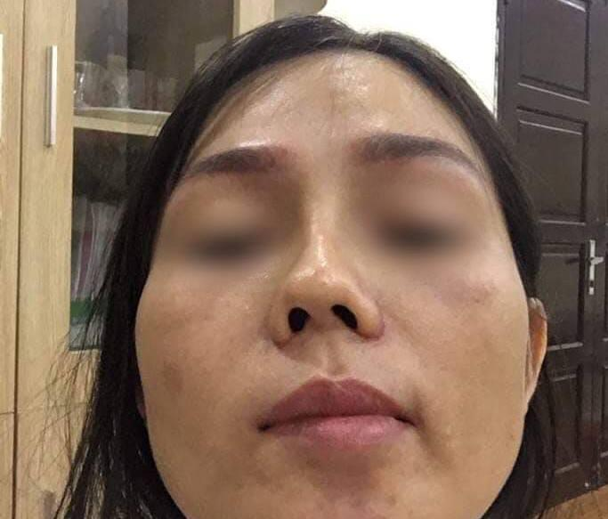 Biến chứng hậu phẫu thuật nâng mũi, cô gái bị áp xe đến lòi cả sụn-7