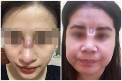 Biến chứng hậu phẫu thuật nâng mũi, cô gái bị áp xe đến lòi cả sụn
