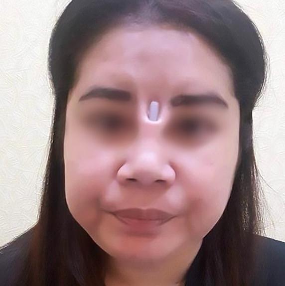 Biến chứng hậu phẫu thuật nâng mũi, cô gái bị áp xe đến lòi cả sụn-2