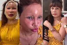 Gương mặt xập xệ sau 2 tuần 'dao kéo', cô dâu Cao Bằng không nhận ra mình trong ảnh