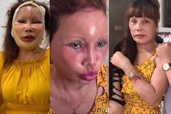 Gương mặt teo tóp sau 2 tuần dao kéo, cô dâu Cao Bằng giật mình không nhận ra bản thân