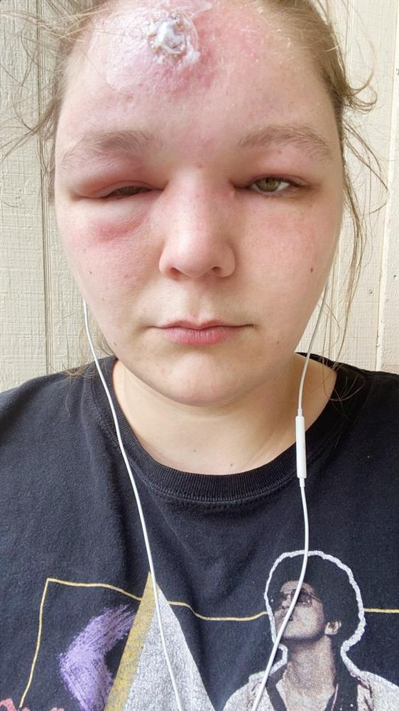 9X bị sưng phồng mắt, mù tạm thời sau 2 tiếng phơi nắng-3